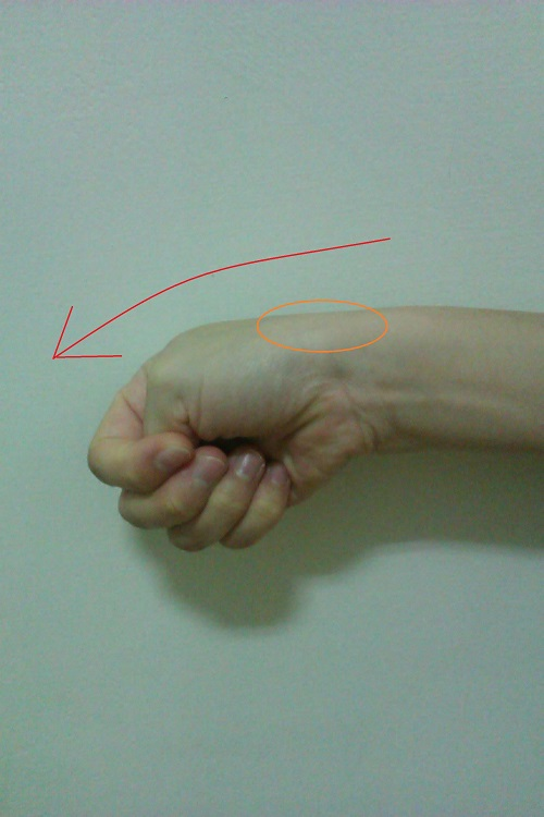 紅色箭頭為手腕彎曲方向。若為媽媽手,手腕彎曲後,橘色圈圈範圍將出現疼痛。
