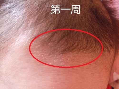 嬰兒洗髮精-慕之恬廊 嫩寶潔髮慕絲第一周使用記錄